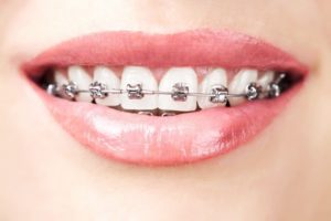 teeth with braces - metal braces Blackfoot