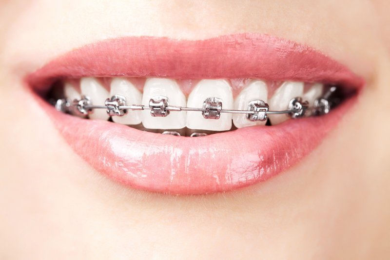 Idaho Falls ceramic braces