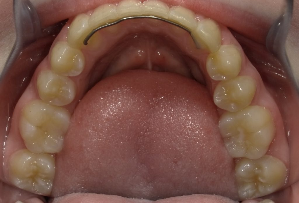 lower bite with retainer